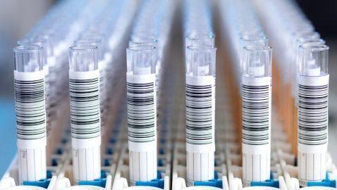 "Campanha ""Fique Sabendo"" realiza testes gratuitos de HIV"