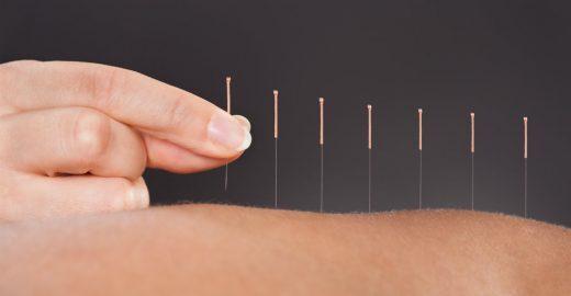 Senac Aclimação oferece sessões de acupuntura por R$ 15
