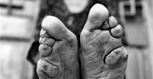 Pés de lótus: fotógrafa registra a dolorosa tradição chinesa