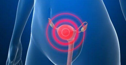 Confira informações importantes sobre o câncer do colo do útero