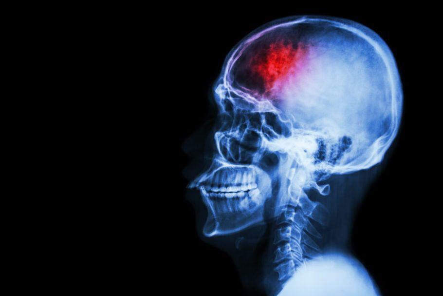 ilustração de um corpo humano com uma marca vermelha no cérebro