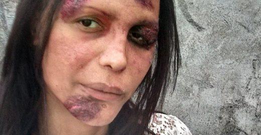 Mulher trans publica foto 'machucada' como protesto contra a transfobia