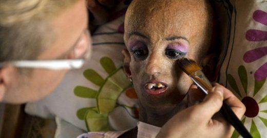 'Acho que sou bonita': garota com doença rara supera expectativa de vida e faz 15 anos de idade