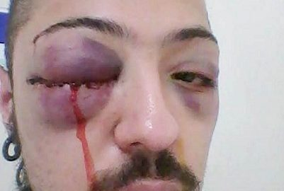 Estudantes acusam policiais por agressão e invasão de propriedade em república universitária