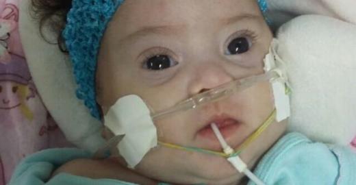 Jovem junta 200 mil assinaturas e consegue cirurgia para irmã de quatro meses