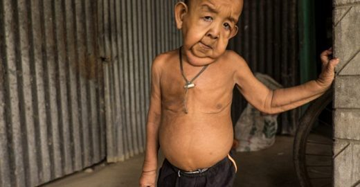 Benjamin Button real: garoto de 4 anos parece um idoso