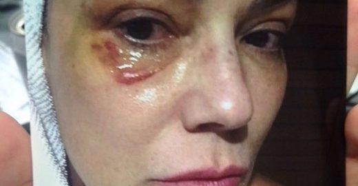 No Fantástico, Luiza Brunet mostra foto de hematoma após agressão