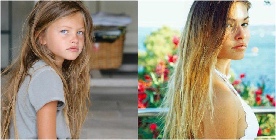 Veja como está hoje a 'criança mais bonita do mundo'