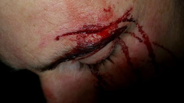 O jovem, que é casado e pais de um menino, mostra o ferimento após a agressão