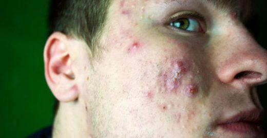 Homem revela como acabou com acne; veja antes e depois