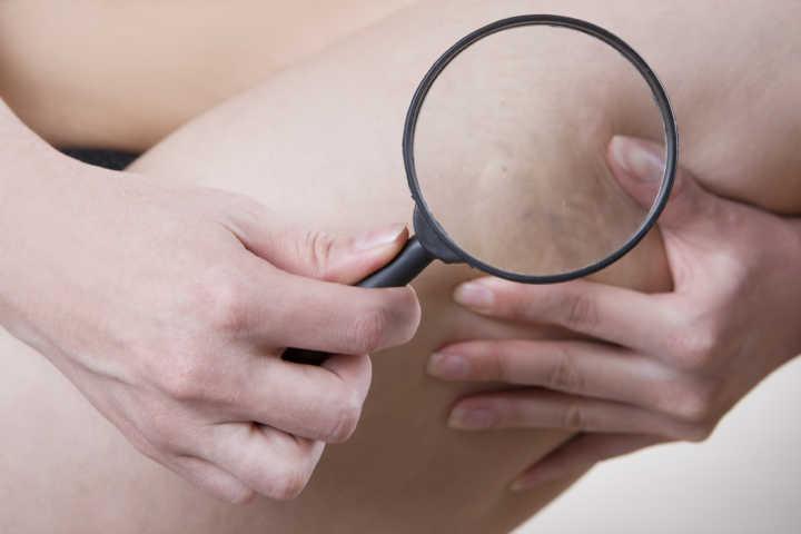 Exame que detecta tendência a trombose e tratamento serão oferecidos pelo SUS