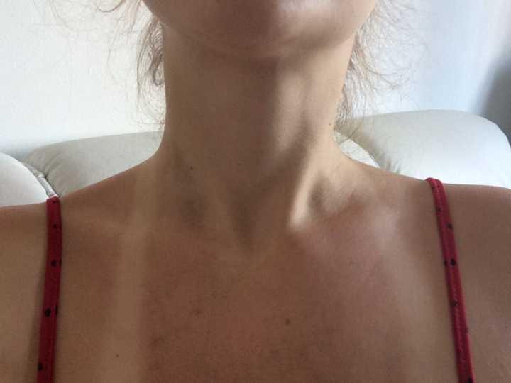 Carolina compartilhou as fotos da agressão nas redes sociais