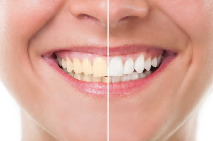 Agua Oxigenada Pode Clarear Os Dentes