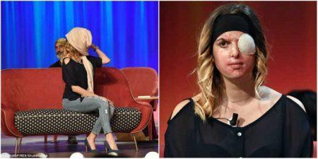Resultado de imagem para Modelo italiana atacada com ácido por ex-namorado exibe rosto pela primeira vez