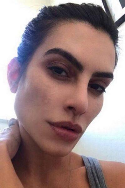foto de Cleo Pires com manchas no rosto