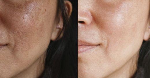 Manchas na pele: entenda o que é melasma e quais os tratamentos