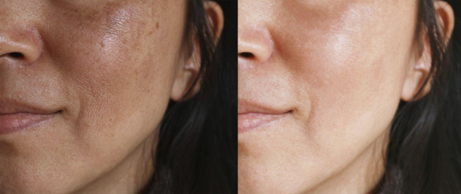 antes e depois do rosto de uma mulher após o tratamento para melasma