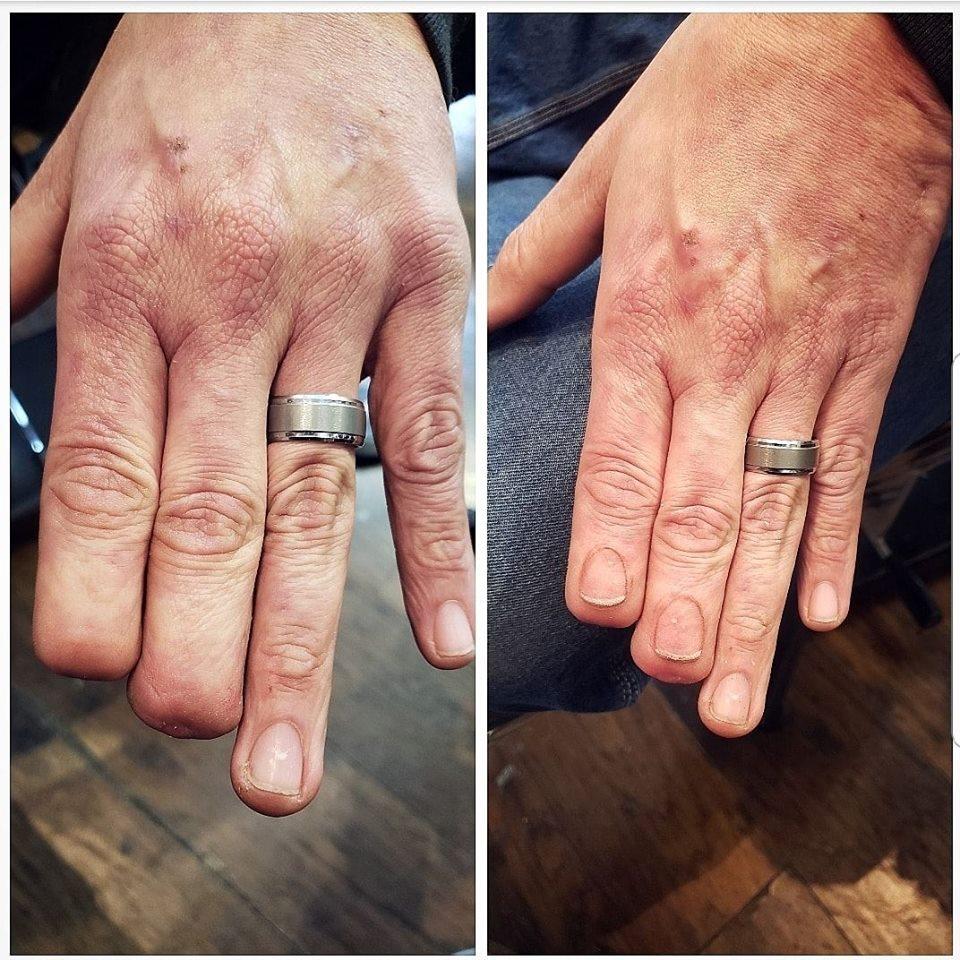 tatuagem realística refaz unha em dedo decepado
