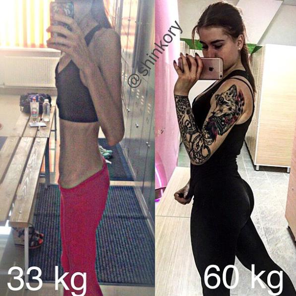 Vera durante a adolescência lutou contra a anorexia