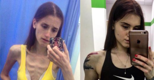Jovem vence anorexia e vira instrutora física. 'Antes e Depois'