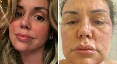 renata banhara antes e depois de doença