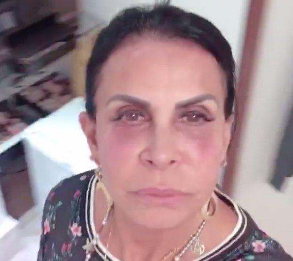 Os riscos da técnica usada por Gretchen para cobrir as olheiras