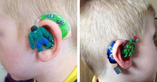 Mãe de menino <mark class='searchwp-highlight'>surdo</mark> cria enfeites para <br>deixar aparelhos auditivos divertidos
