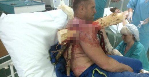 Homem cai de asa-delta e fica com tronco de árvore preso no braço