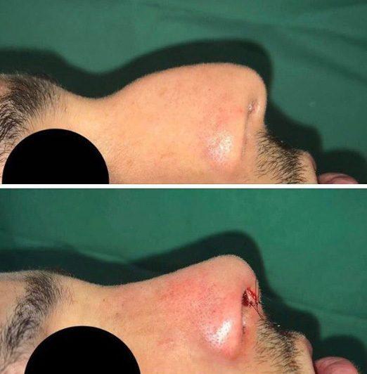 antes e depois de cirurgia plástica no nariz