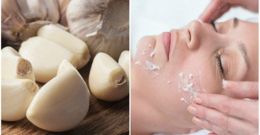 Usar alho na pele previne acne, manchas e envelhecimento precoce