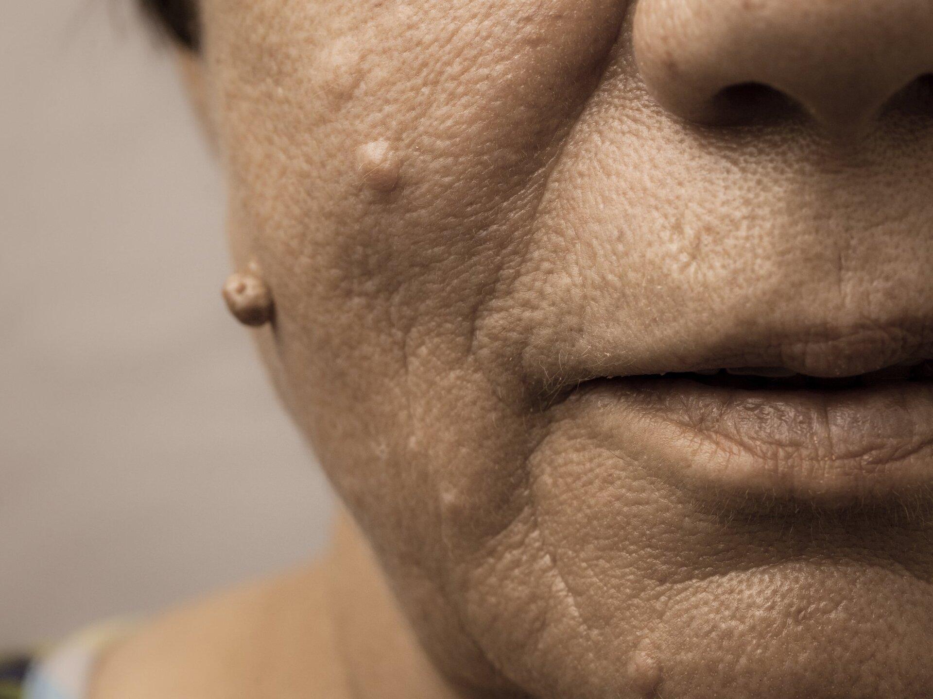 Mulher idosa com rugas e verrugas