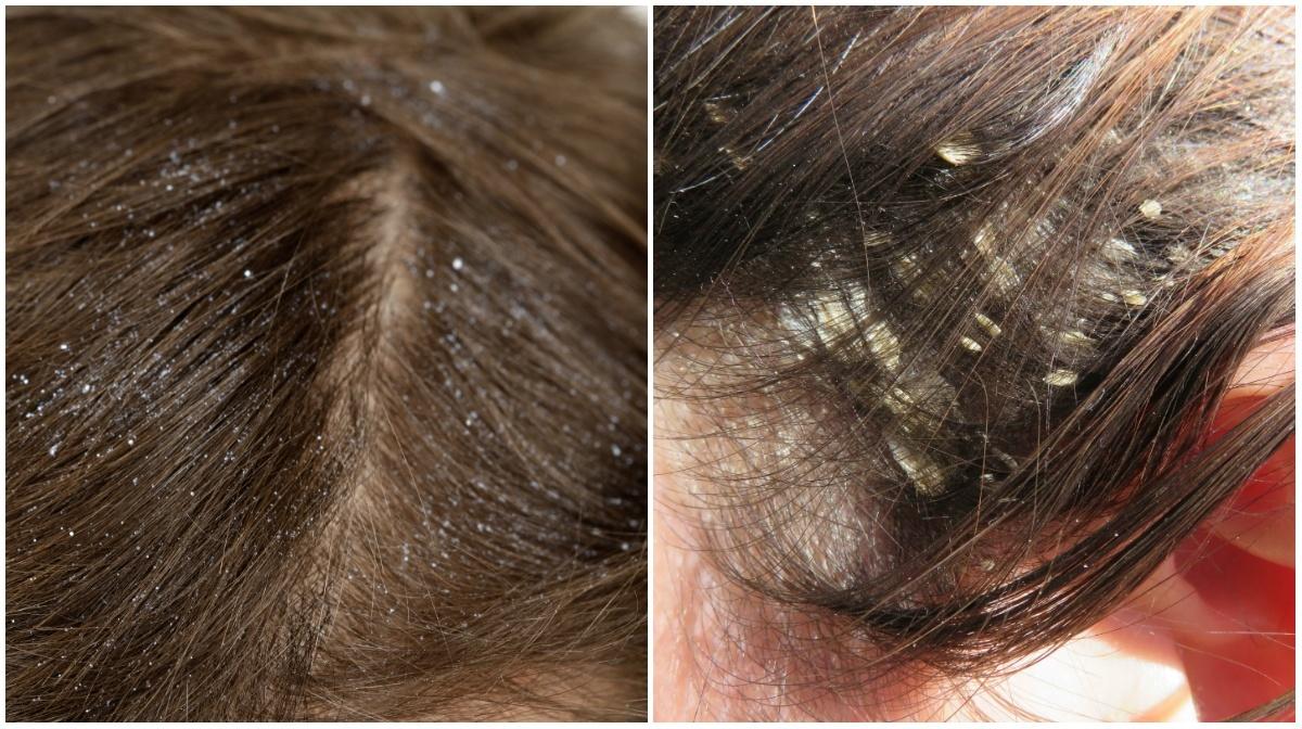 Comparativo entre caspa e dermatite seborreica
