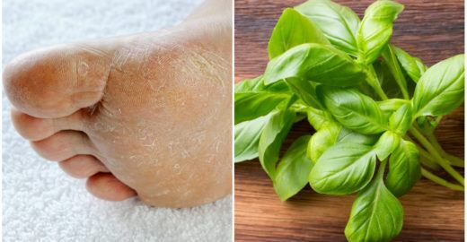 Receitas caseiras para acabar com pés ressecados e rachados