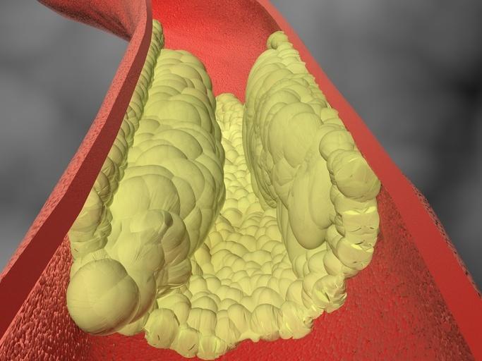 gráfico mostra artéria entupida por colesterol