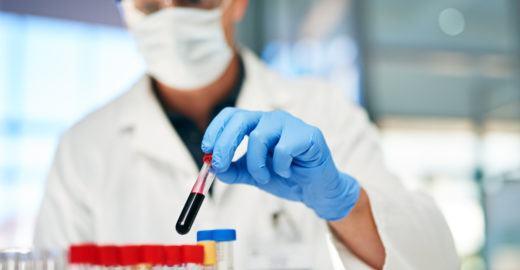 Laboratório oferece mil exames de PCR gratuitos em São Paulo