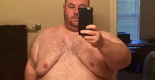 Homem 'gordo demais para sexo' emagrece 101kg e surpreende
