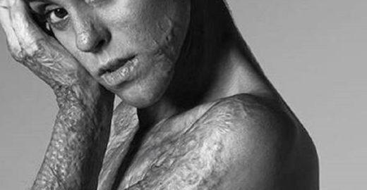 Modelo com corpo queimado é capa de livro com famosos