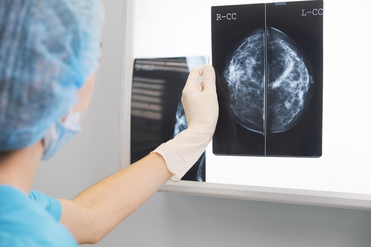 médico olhando uma radiografia de mama