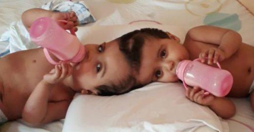 Hospital divulga foto de siamesas após cirurgia de separação