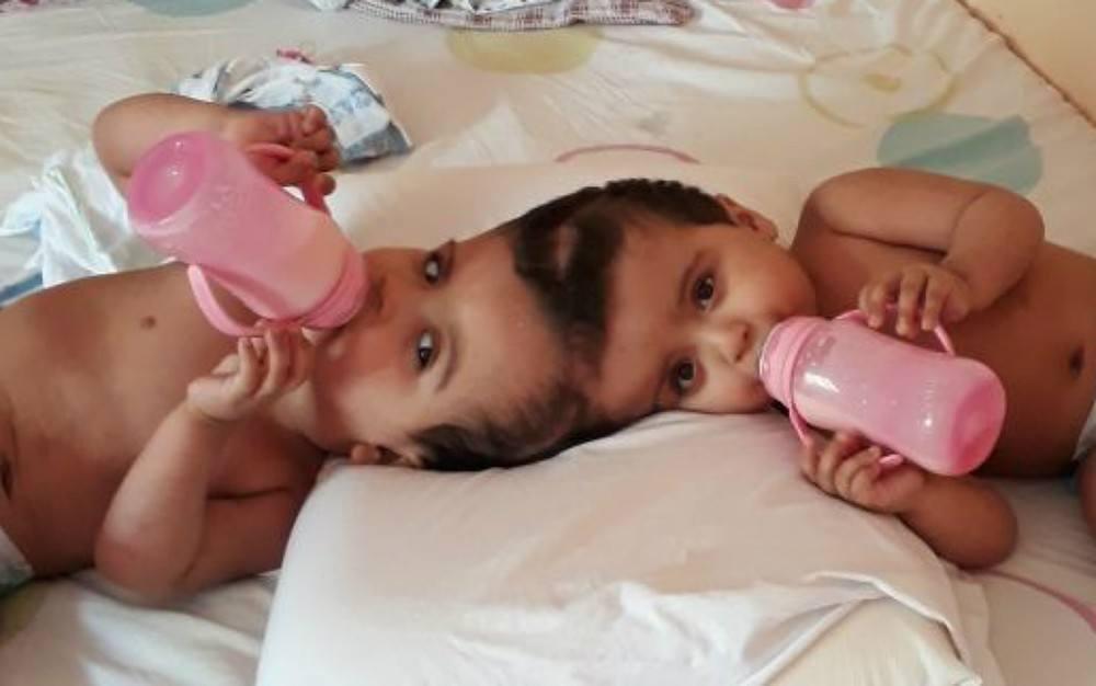 gêmeas ainda unidas pela cabeça