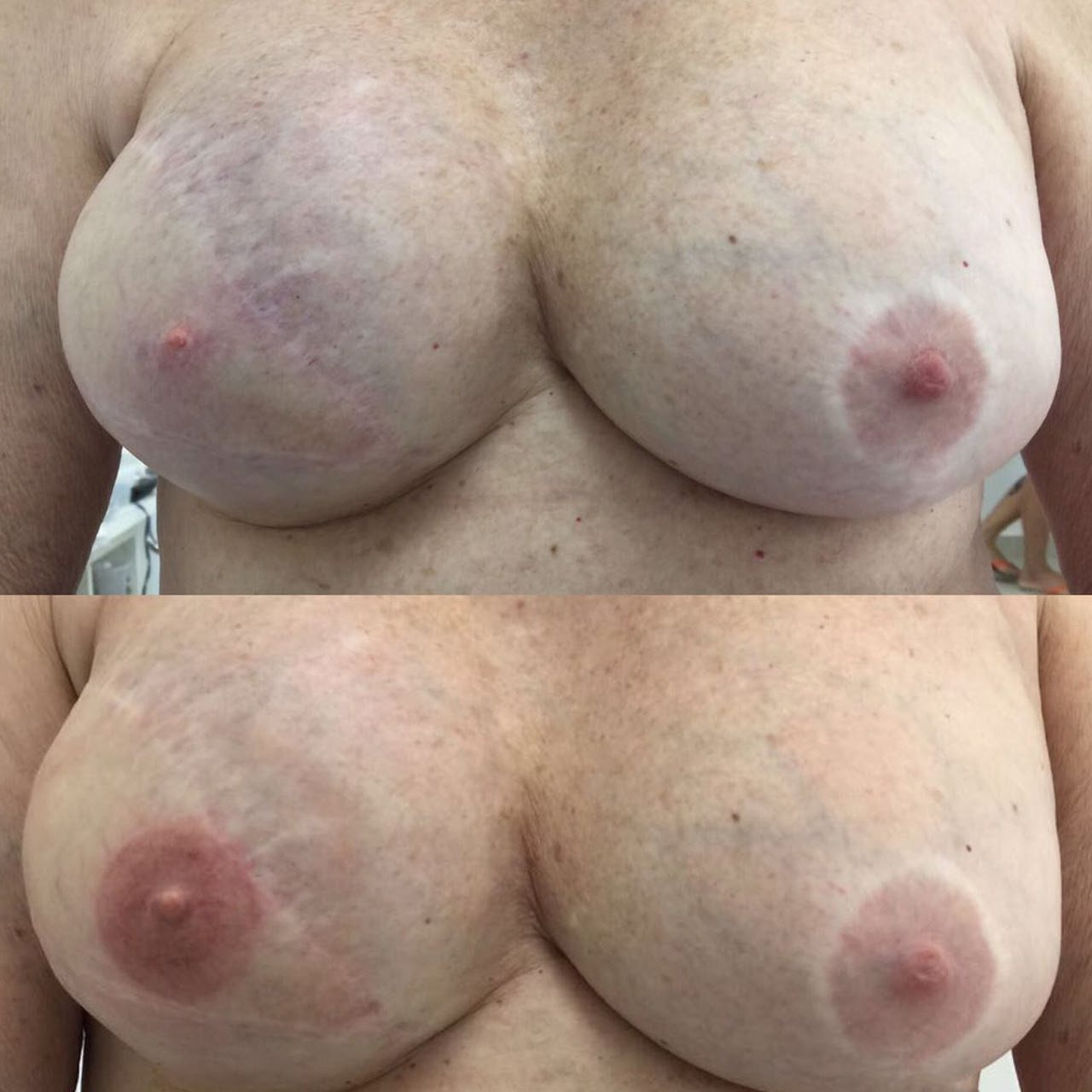 fotos de mamas antes e depois da tatuagem