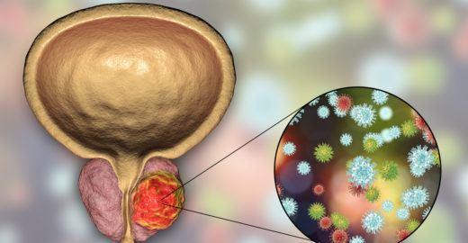12 sinais de câncer de próstata em estágio avançado
