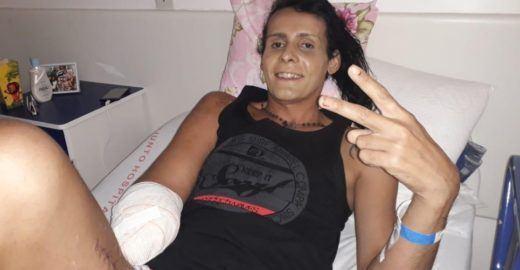 Transexual tem braço amputado após ser agredida em SP