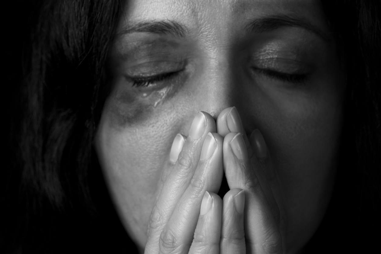 mulher com o olho roxo após agressão