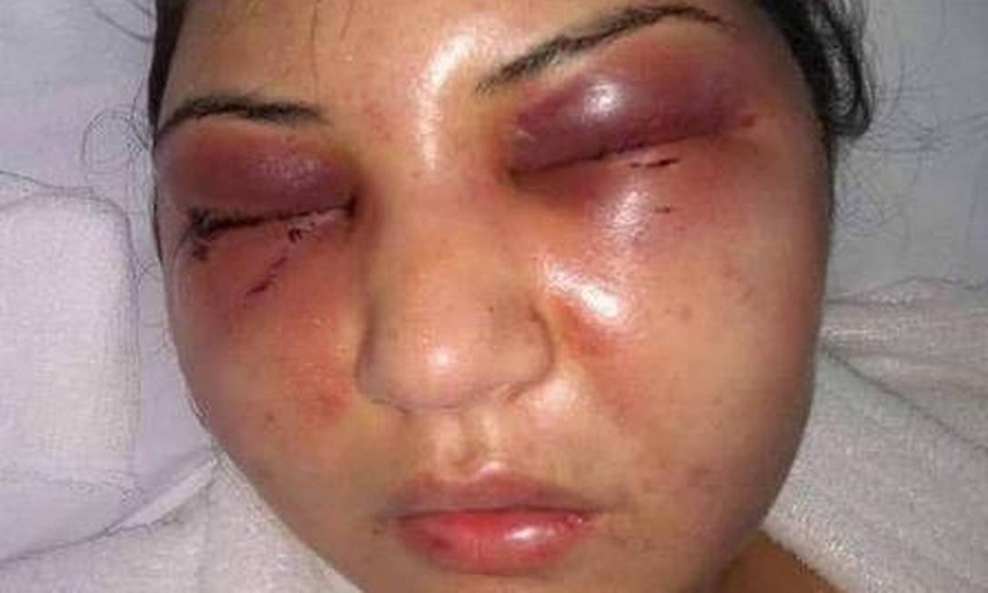 Christini com o rosto desconfigurado após agressões do marido, Fábio Tuffy Felippe, filho do presidente da Câmara dos Vereadores do RJ