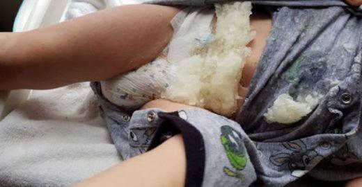 Pais fazem alerta sobre fraldas de marca famosa que explodem
