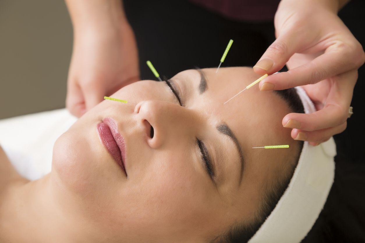 mulher com agulhas no rosto