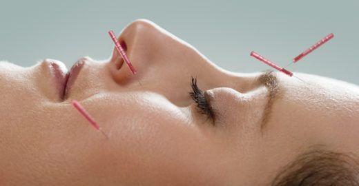 Acupuntura facial suaviza linhas de expressão e trata a pele