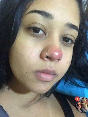 jovem com piercing e o nariz vermelho