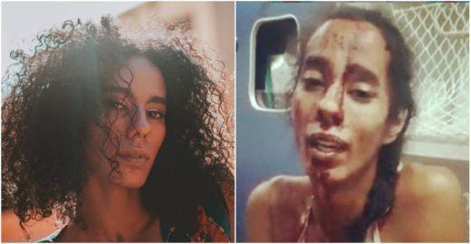 Em Niterói, mulher trans é espancada na rua por vários homens